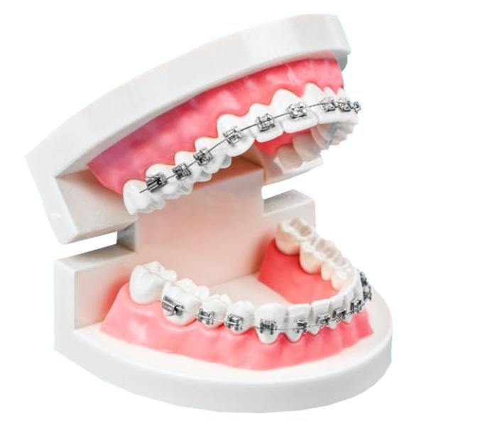 braces-2.jpg