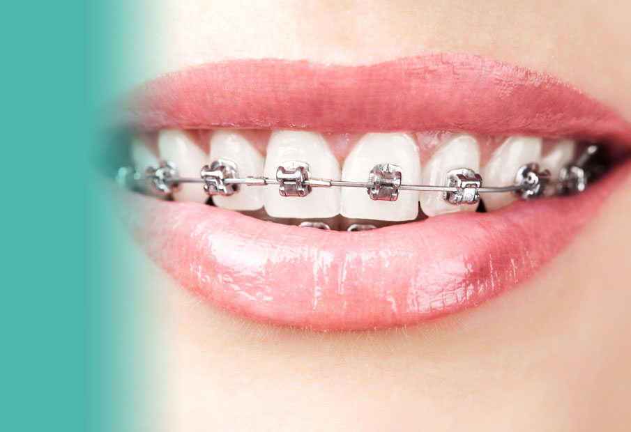 braces-3.jpg